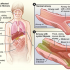 CAN GENE THERAPY AND RNA TECHNOLOGY COMBAT CYSTIC FIBROSIS?