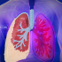Can These Breakthrough Therapeutics win the fight against Mesothelioma?