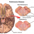 Fighting Parkinson's: Novel Therapeutics could prove to be game-changers